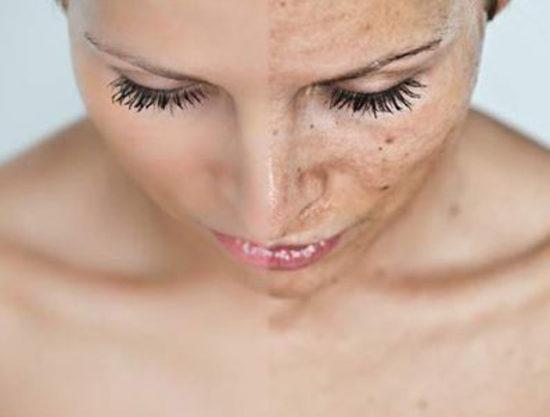 Come curare le macchie sulla pelle del viso